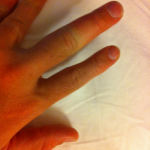 Vol State 500K: Swollen Finger - Yellow Jacket/Bee Sting